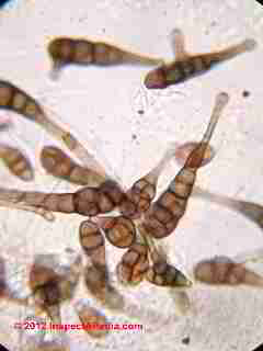 Alternaria mold spores -  © 2001 Daniel Friedman